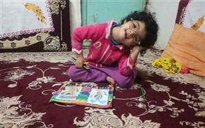 سپاه هزینه درمان   تنها کودک ایرانی مبتلا به «سندرم هنکام»  را تقبل کرد