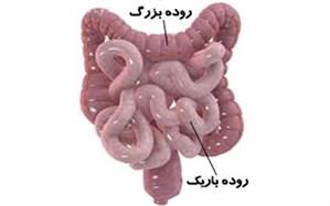 افزایش سرطان روده در گیلان