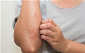 کودکان مبتلا به اگزما بیشتر در معرض خطر آلرژی غذایی هستند