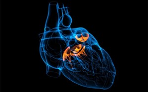 توزیع بیش از ۳ هزار باطری قلب در شش ماه اول سال جاری