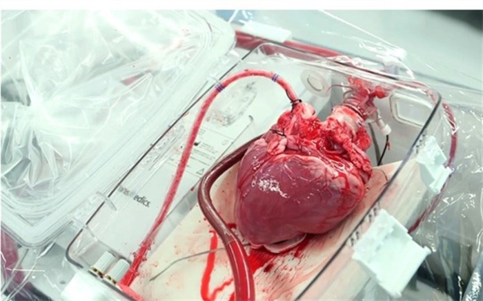 پیوند قلب