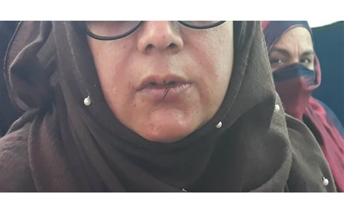 نامزدهای معترض انتخابات مجلس افغانستان لبهای خود را دوختند