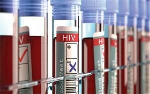 یک آزمایش امیدبخش برای مقابله با ویروس ایدز