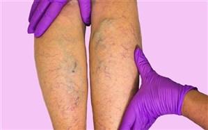6 روش برای مقابله با عوارض جدی سیاهرگهای واریسی
