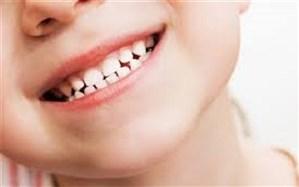 کشیدن دندانهای شیری کودکان بدون توجیه مشکلساز میشود
