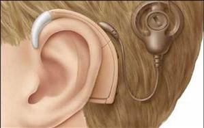تولد سالانه ۴۰۰۰ کودک ناشنوا در کشور