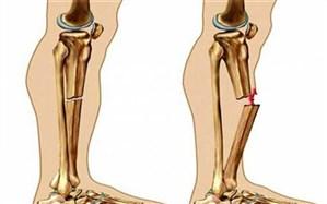 ۴ نکته اصلی برای پیشگیری از پوکی استخوان
