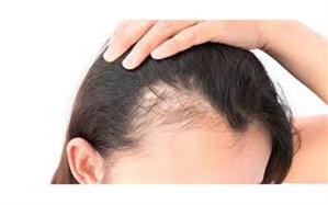 ۵ نکته برای پیشگیری از ریزش مو