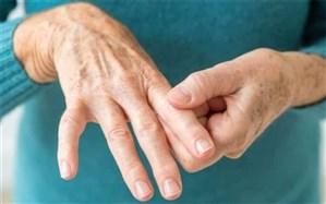 بیش از 40 درصد مردم کشور از دردهای استخوانی رنج میبرند