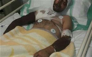 اسیدپاشی پدری روی پسر و عروسش + تصویر