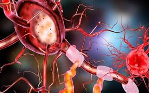شناسایی فرآیندی که در بروز بیماری آلزایمر موثر است