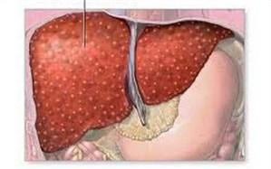 مهمترین علل بروز «تنبلی کبد» چیست؟