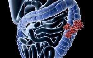 ابتلا به سرطان روده در بین جوانان جهان افزایش یافته است