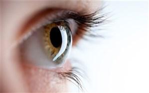 روشهای تشخیص بدرنگ بینی