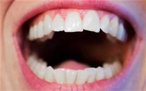 تاثیر شکل دهان افراد بر زبان گفتاری نسلهای آینده