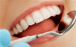الگوبرداری اینبار از لمینت دندان سلبریتیها
