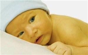 زردی نوزادان را جدی بگیرید