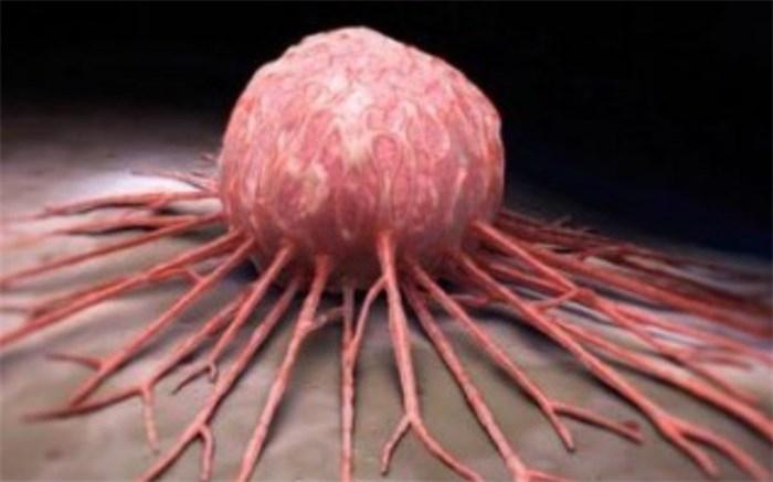 سرطان-سینه-مردان