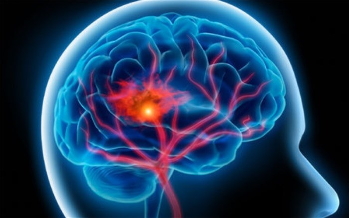 سکته مغزی