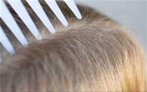 روشهای تشخیص شپشِ سر