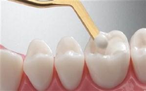 تولید نانوکامپوزیتهای دندان نژاد ایرانی در کشور