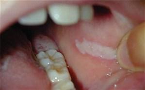 عدم رویش دندان «عقل» باعث تبدیل کیستهای لثه به تومور میشود