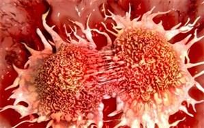 سالانه یک میلیون نفر در دنیا بر اثر سرطان معده جان خود را از دست میدهند