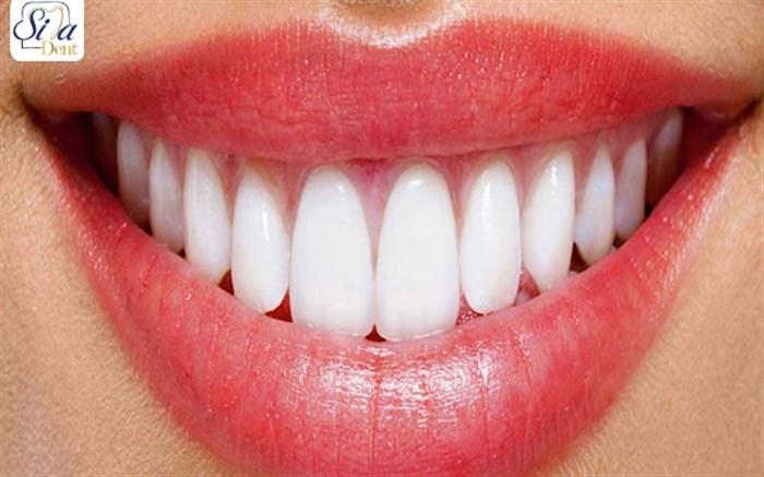 متداول ترین روش اصلاح طرح لبخند