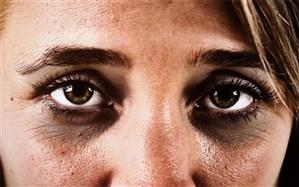 حلقههای تیره زیر چشم و روشهایی طبیعی برای بهبود آن