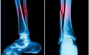 آنچه باید در مورد شکستگیهای پاتولوژیک یا مرضی بدانید