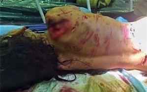 آخرین وضعیت دخترک گلفروش که مورد حمله سگها قرار گرفت