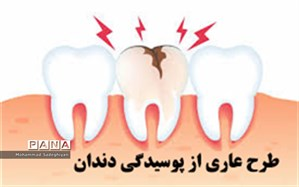 طرح عاری از پوسیدگی دندان در منطقه 19