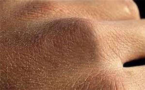 راههای مقابله با خشکی پوست دست در روزهای کرونایی