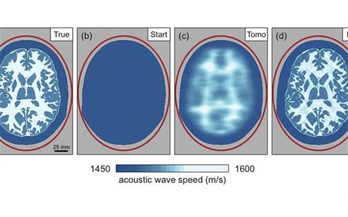 تصویربرداری لرزهای و ارائه تصاویر دقیق از مغز