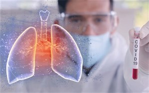 آخرین وضعیت ۳ روش درمانی کروناویروس در ایران