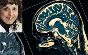 تشخیص چند دهه زودتر بیماری آلزایمر با یافته جدید دانشمند ایرانی