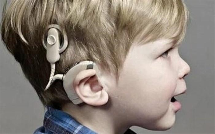 پبش بینی انجام سالانه ۳۴۰ کودک تحت کاشت حلزون شنوایی در گیلان