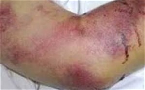 بستری ۴ گیلانی مبتلا به تب کریمه کنگو