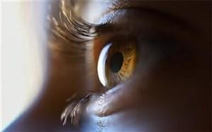 راههای پیشگیری از انتقال کرونا از طریق چشم