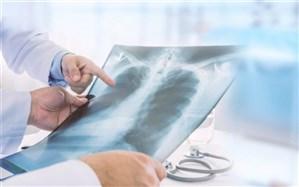 سلامت استخوان و ارتباط آن با سلامت قلب