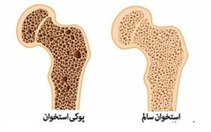 شکستگی ناشی از پوکی استخوان در زنان ۴ برابر مردان است