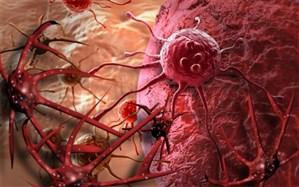 HPV و یک سرطان زنانه