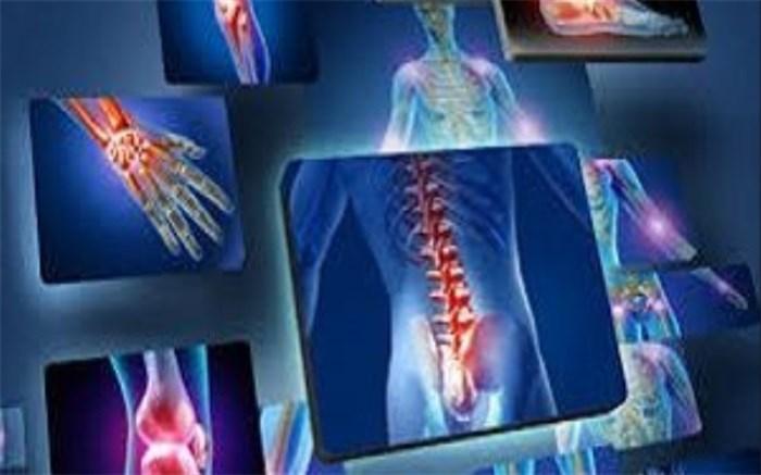 شش خوراکی مفید برای کاهش دردهای مفصلی