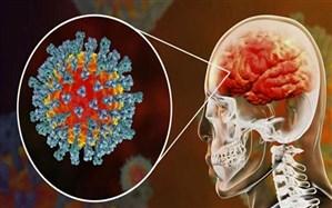 اثرات ویروس کرونا بر مغز چیست ؟