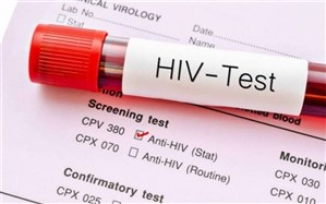 ۷۲ ساعت طلایی برای نابودی ویروس اچ آی وی