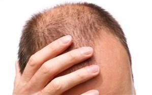 دلایل  علمی برای ریزش موها