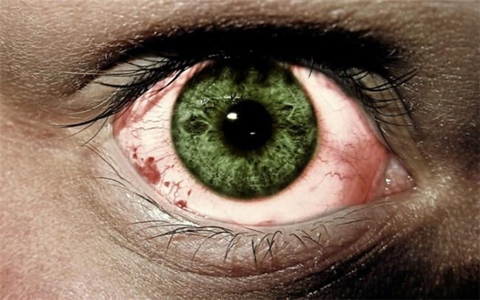 از دست دادن کوتاه مدت دید یا نابینایی موقتی
