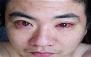 مردی بدلیل استفاده مداوم از تلفن همراه سرطان چشم گرفت