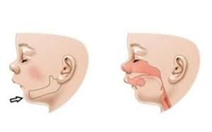 سندروم «پیررابین» چیست و چگونه درمان میشود؟