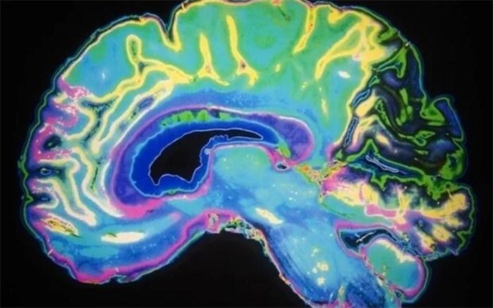 نرمکنندهها و اختلال عملکردهای مهم مغز